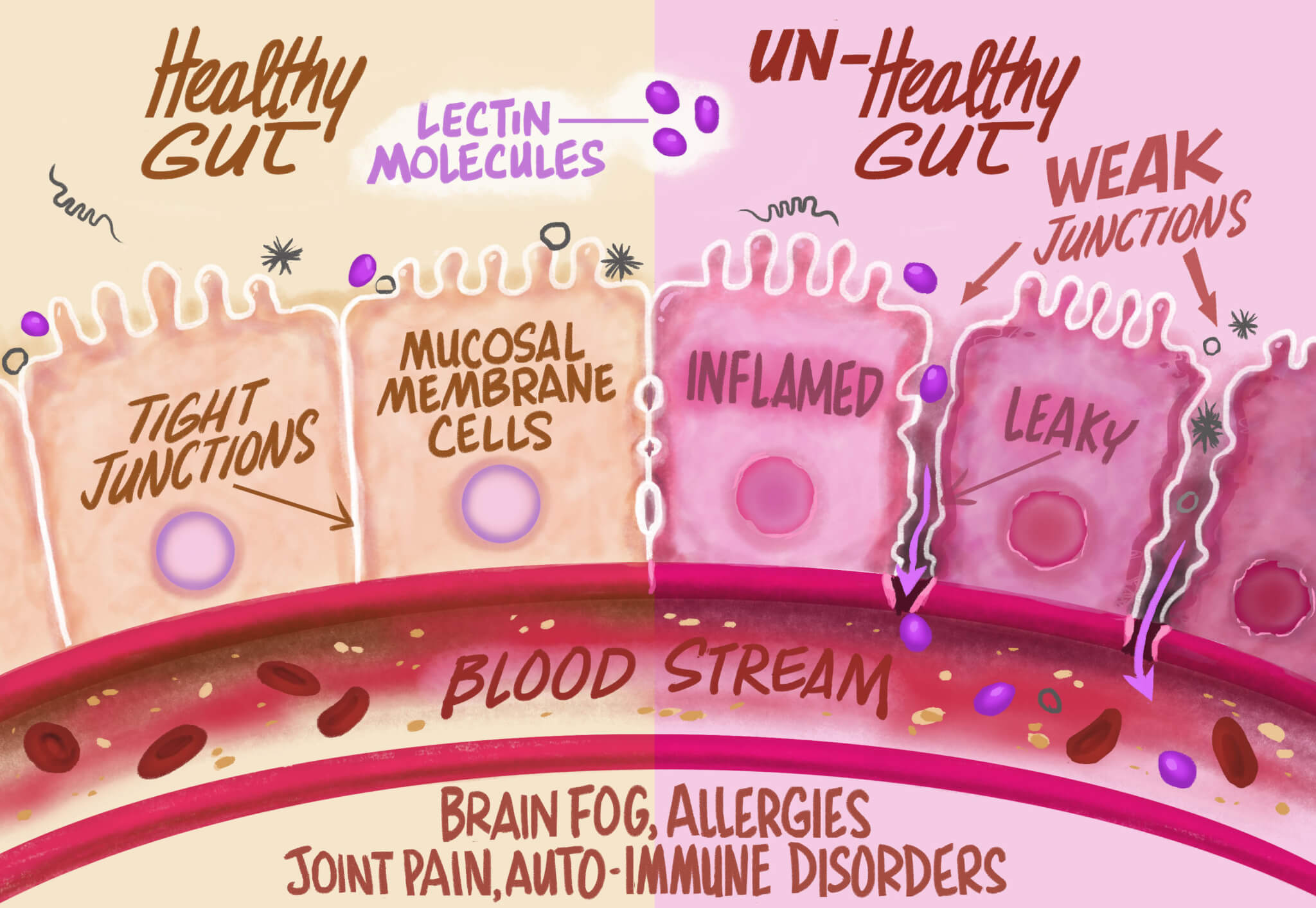 how do lectins attack infographic