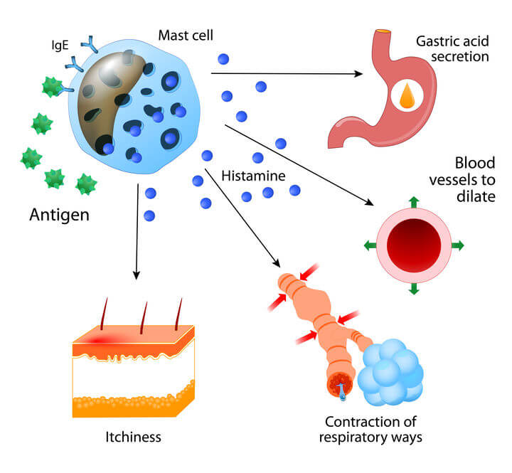 how to reduce histamine in the body   Gundry MD