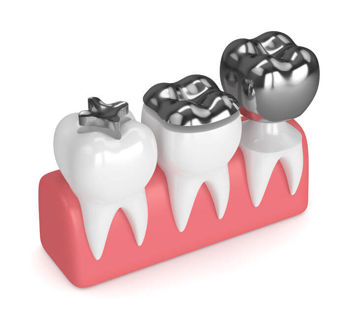 removing amalgam fillings side effects | Gundry MD
