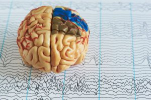 brain waves during sleep | Gundry MD